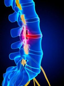 Herniated Disc Auto Accident