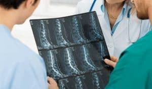 Spondylolisthesis Hiram Lawyer for Workers Compensation